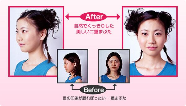 Before:目の印象が腫れぼったい一重まぶた。After:自然でくっきりした美しい二重まぶた。